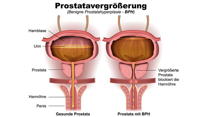 Gutartige prostatavergrößerung beschwerden