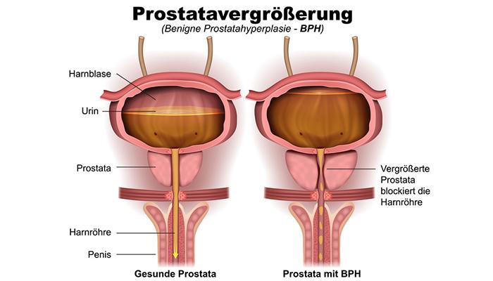 psa urologie prostata